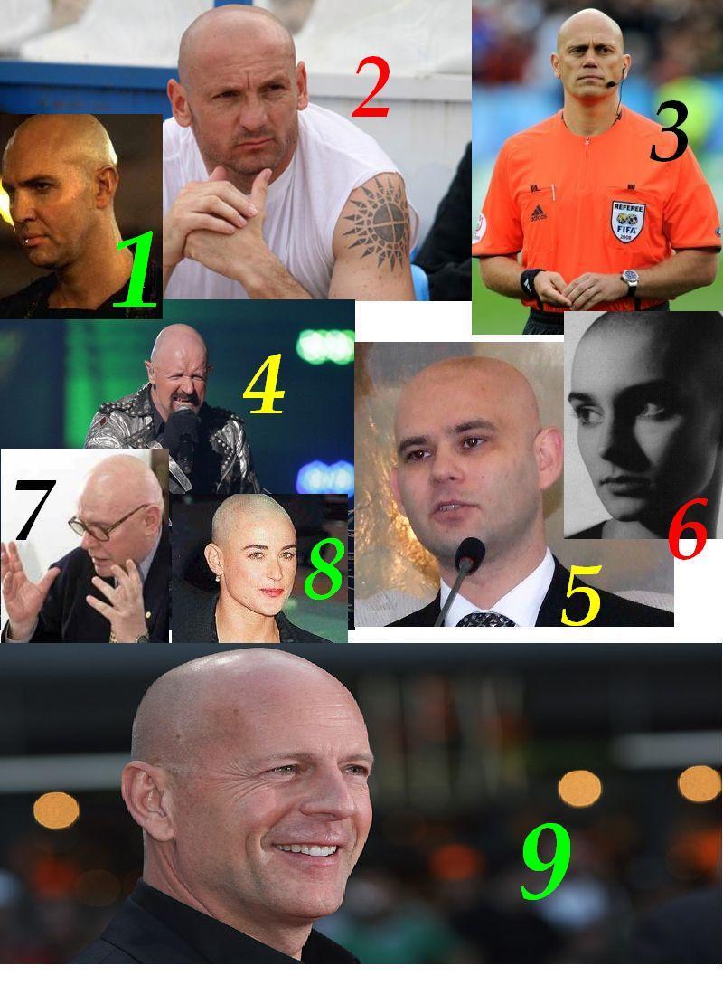 copy-of-bald